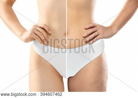 Overweight Woman With Cellulite Legs And Belly In White Underwear Comparing With Fit And Thin Body I