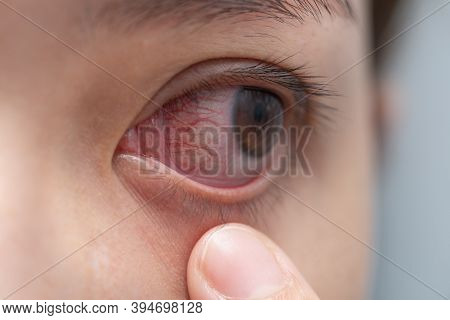 Closeup Of Irritated Or Infected Red Bloodshot Eye - Conjunctivitis. Red Eye Of Woman, Conjunctiviti