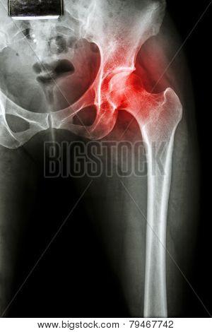 Arthritis at hip joint ( X-ray pelvis & hip joint ) ( Gout Rheumatoid )