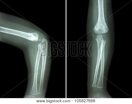 Film X-ray Of Child 's Elbow ( Normal Child 's Elbow ) ( Side And Front View , Lateral And Anterior