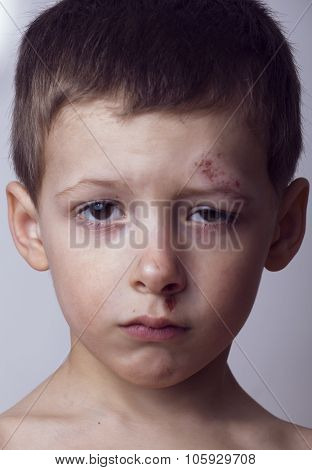 Little boy whipped close up, isolated