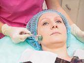 Cosmetology mesoteraphy microneedle procedure. Rejuvenation revitalization skin nutrition wrinkle reduction. t-shirt