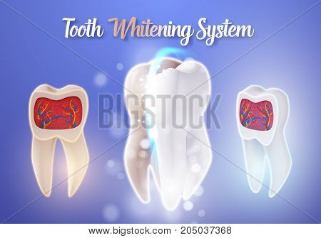 Illustration of Vector Teeth Cleaning Process. 3D Realistic Vector Teeth Whitening Process