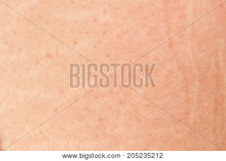 human skin as a background. close-up . Photo as an abstract background