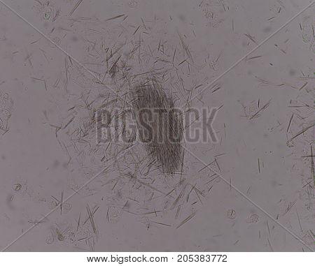 Moderate Uric Acid Crystal Needle Shape..