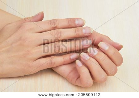 Female hands without varnish on nails. Young woman clean hands close up. Woman gentle hands with clean natural nails.