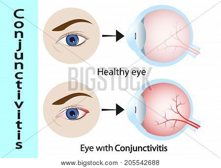 Conjunctivitis. pink eye (with inflammation). External View and Vertical section of the human eyes and eyelids. Schematic diagram. detailed illustration