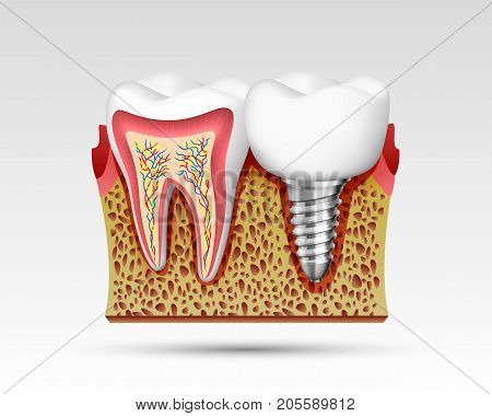 3d teeth in a cut with nerve endings and with an implant. Vector illustration