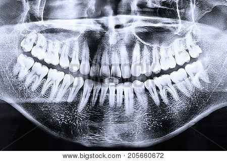 medical transparent anatomy Panoramic dental x-ray anatomy