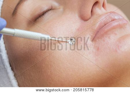 Procedure For Cleaning The Skin Of The Face With A Steel Appliance With A Spoon From Blackheads And