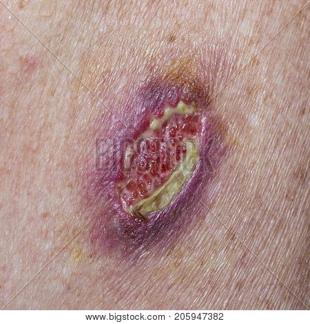 Serious open wound after the removal of a Basal Cell Carcinoma. Wound dehiscence is a surgical complication in which a wound ruptures along a surgical incision.