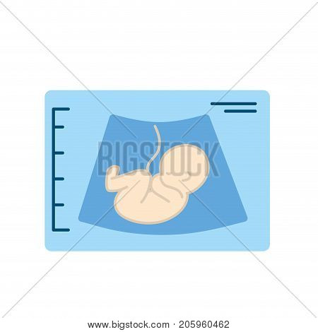 ultrasound of baby with umbilical cord vector illustration