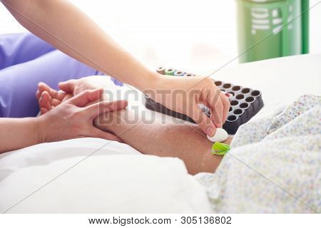Nurse Preparing Patient To Do A Blood Analysis With Veins Viewer Device. Nurse Disinfecting Patient'