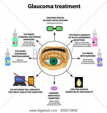 Glaucoma Treatment. Eye Drops. World Glaucoma Day. The Anatomical Structure Of The Eye. Infographics