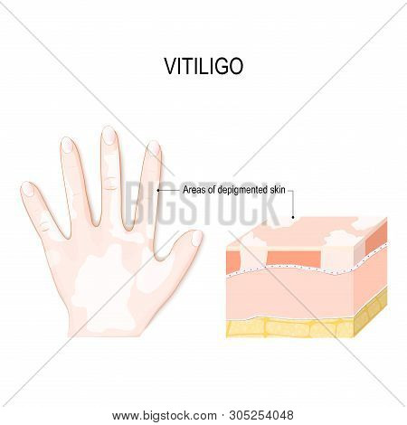 Vitiligo. Is A Skin Condition Characterized By Portions Of The Skin Losing Their Pigment. It Occurs