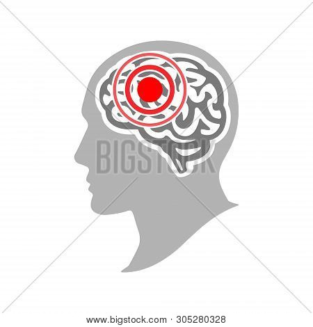 Headache And Migraine Concept. Silhouette Of A Human Head With A Headache. Brain Disease. Vector Ill