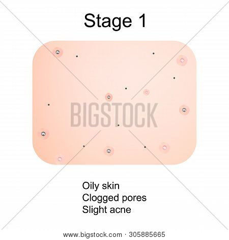Stage 1 Of Development Of Acne. Inflamed Skin With Scars, Acne And Pimples. The Texture Of Inflamed