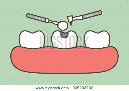Step Of Tooth Amalgam Filling By Dental Tools To Protection Decay Tooth - Teeth Cartoon Vector Flat