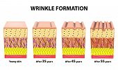 Stages of wrinkles at different ages. Anatomical structure of the skin. Elastin, Hyaluronic acid, Collagen. Infographics. skin aging. illustration on isolated background. poster