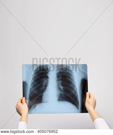 A Doctor Examines An X-ray Of The Lungs Of A Patient With Pneumonia. Pulmonology And Radiology, Lung