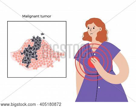 Vector Isolated Illustration Of Malignant Tumor In Healthy Tissue. Disease In A Woman Breast. Spread