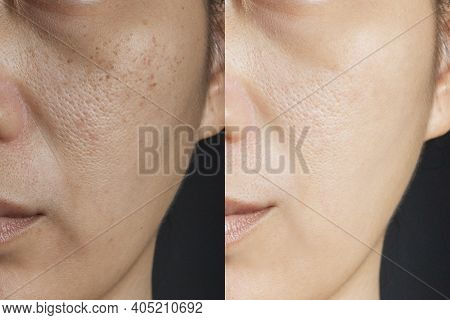 Two Pictures Compare Effect Before And After Treatment. Skin With Problems Of Freckles , Pore , Dull