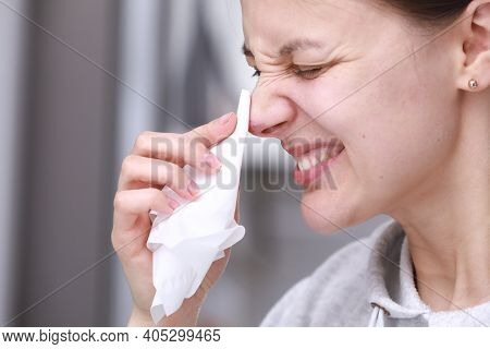 Herpes On The Nose - Pretty Young Woman Feels Discomfort Of Herpes On Her Face And Holds A Handkerch