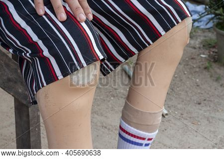 A Woman Wore Prosthetics Legs On Both Sides Due To An Injury Or Disease As She Sits On The Chair At