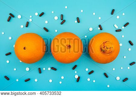 Oranges With A Large Navel, Pills And Capsules On A Blue Background. Concept Of Different Stages Of