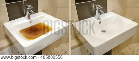 Blockage In The Sink Before And After The Problem Is Resolved. Clog Problems In The Bathroom And Toi