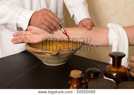 Reenactment of the antique medical procedure of blood letting or bleeding a patient