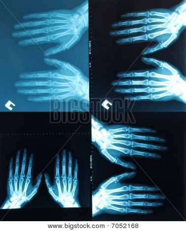 X-ray picture (radiograph). X-ray scanning in medical hospital poster
