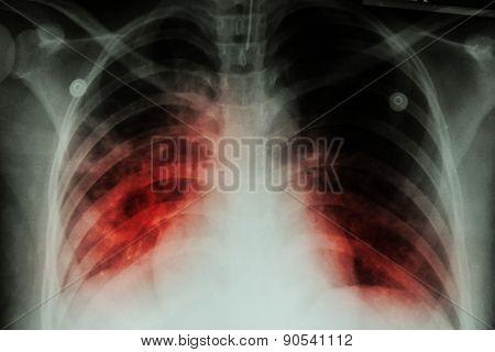 Pulmonary Tuberculosis ( TB )