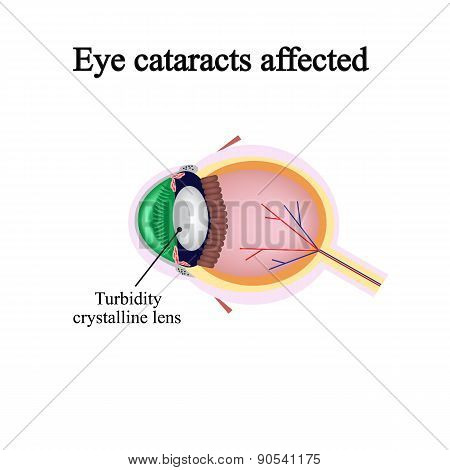 The structure of the eye. Eye cataracts affected. Violations occur when a cataract