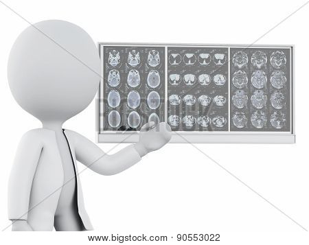3d white people doctor with cranial brain films
