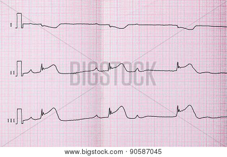 Ecg With Acute Period Of Macrofocal Myocardial Infarction, AV Block II Degree