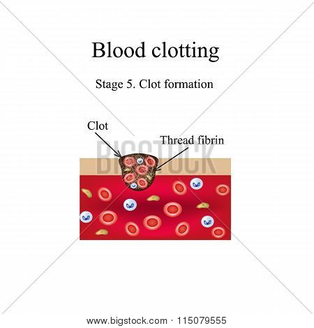 Blood clotting. 5 stage. Infographics. Vector illustration