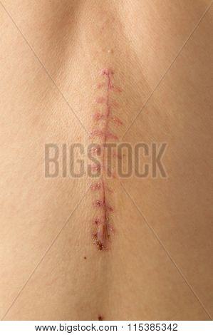 Operation Scar