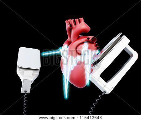 Defibrillator and heart on a black background. 3d illustration