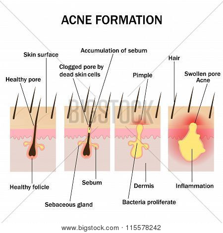 Illustration of acne formation on the human skin poster