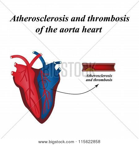 Atherosclerosis and thrombosis of arteries of the heart. Infographics. Vector illustration