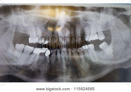Dental X-ray. Radiograph Of A Human Jaw.