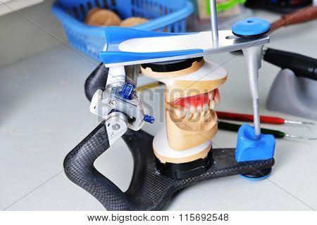 Gypsum Model Of Jaw