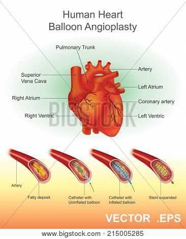 Angioplasty Balloon angioplasty is an endovascular procedure to widen narrowed or obstructed arteries or veins typically to treat arterial atherosclerosis