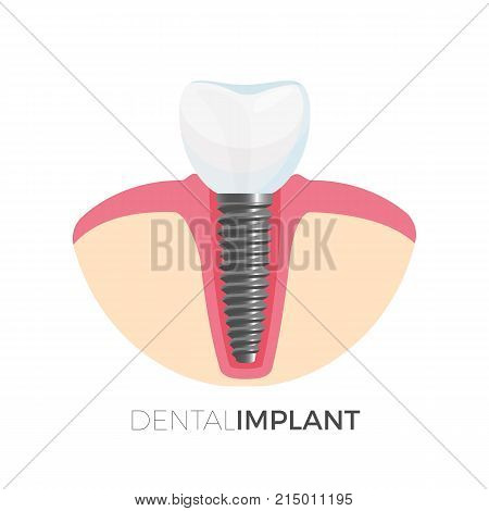 Dental implant poster with sample of tooth and screw which joins it to gum, headline placed below icon, isolated vector illustration clinic logo design