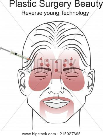 Plastic surgery is a surgical specialty involving the restoration, reconstruction, or alteration of the human body. It includes cosmetic or aesthetic surgery, reconstructive surgery, craniofacial surgery, hand surgery, microsurgery, and the treatment of b