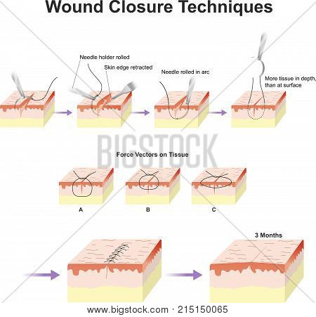 A wound is a type of injury which happens relatively quickly in which skin is torn, cut, or punctured or where blunt force trauma causes a contusion.