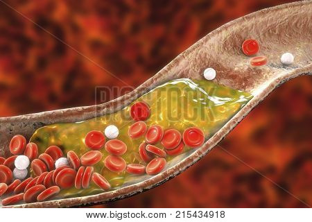 Cholesterol plaque in artery, 3D illustration. Concept for coronary artery disease