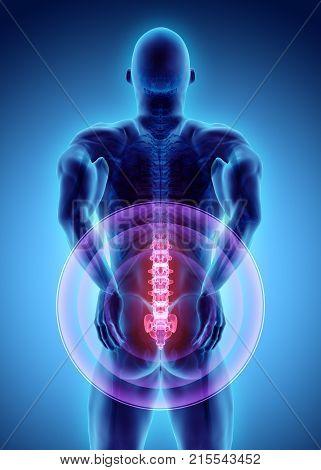 3D Illustration Of Sacral Spine Painful.