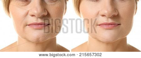 Mature woman before and after biorevitalization procedure on white background